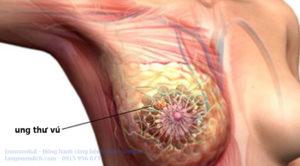 Điều trị bệnh ung thư vú ở đâu tốt
