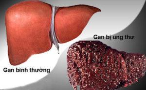 Điều trị bệnh ung thư gan ở đâu tốt